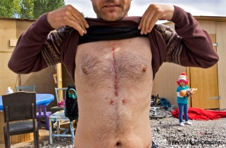 Refugee showing his scar from recent heart surgery as a result o